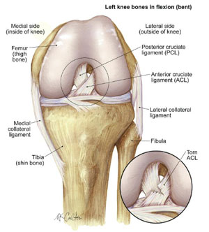 Anterior cruciate ligament acl injuries cincinnati acl one of the most common knee injuries is an anterior cruciate ligament sprain or tear with an incidence in the united states approaching 200000 annually ccuart Choice Image