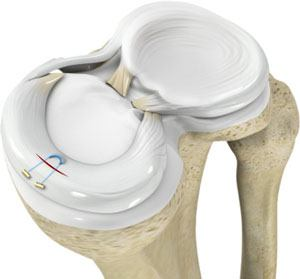 All-inside Meniscus Repair