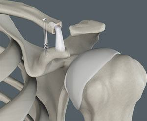 Coracoclavicular Ligament Reconstruction