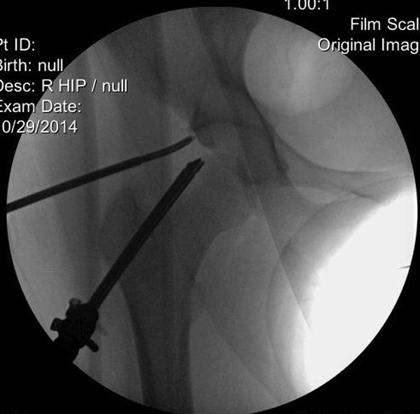 Femoroacetabular Impingement