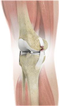 Medial Collateral Ligament Tear in Adults