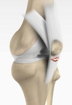 Patellar Tendon Rupture Cincinnati Knee Arthritis Treatment West